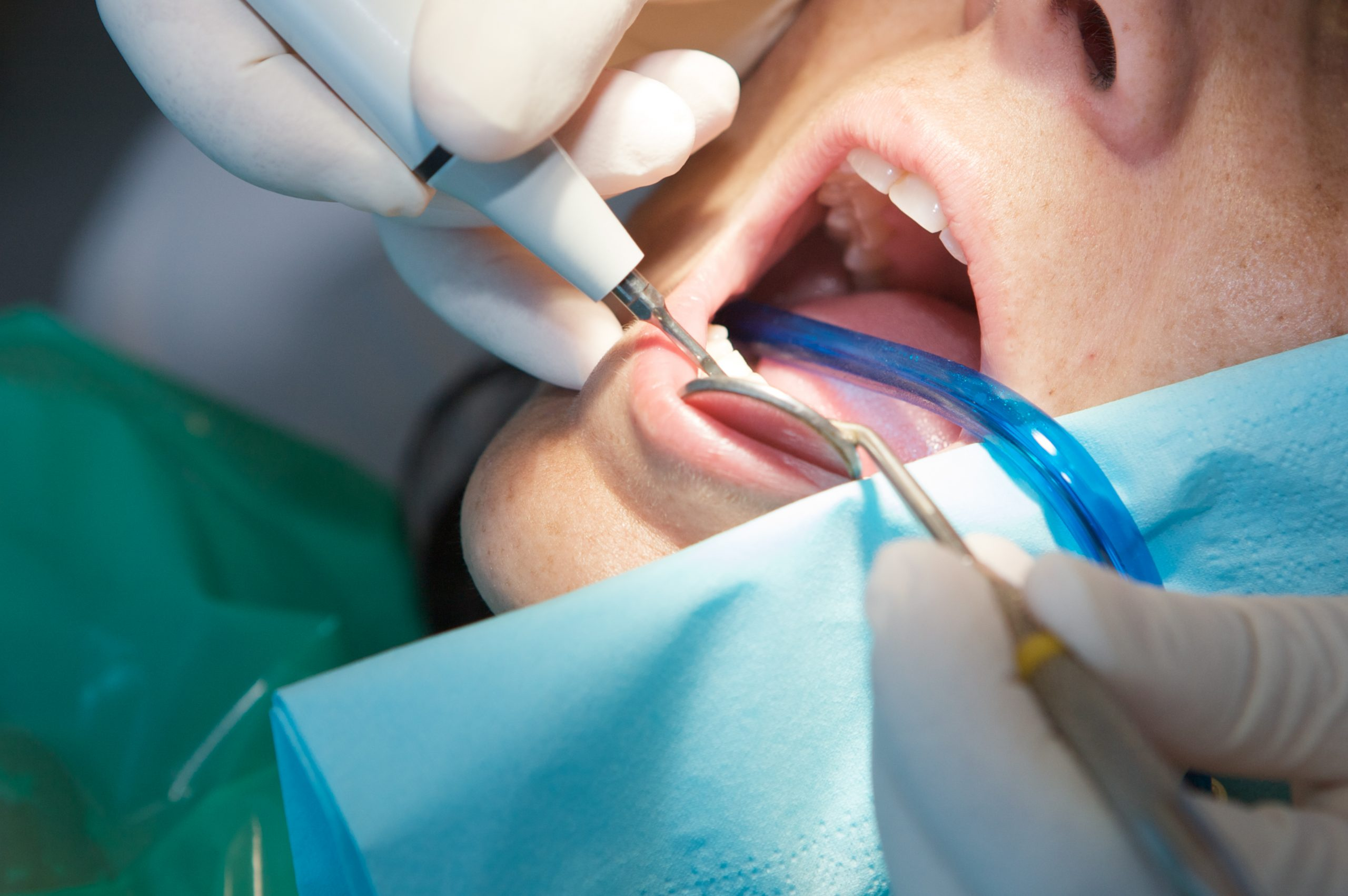 Announcement from the American Dental Association – Dental practices remain open amid COVID-19 surge